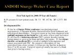 asdoh sturge weber case report3