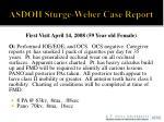 asdoh sturge weber case report6