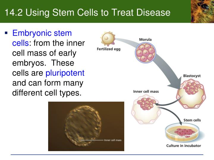 14.2 Using Stem Cells to Treat Disease