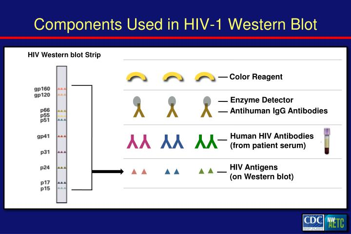 Components Used in HIV-1 Western Blot