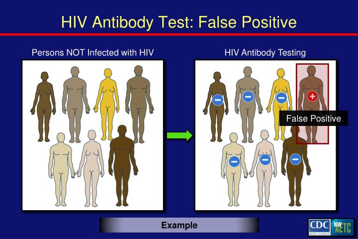 HIV Antibody Test: False Positive