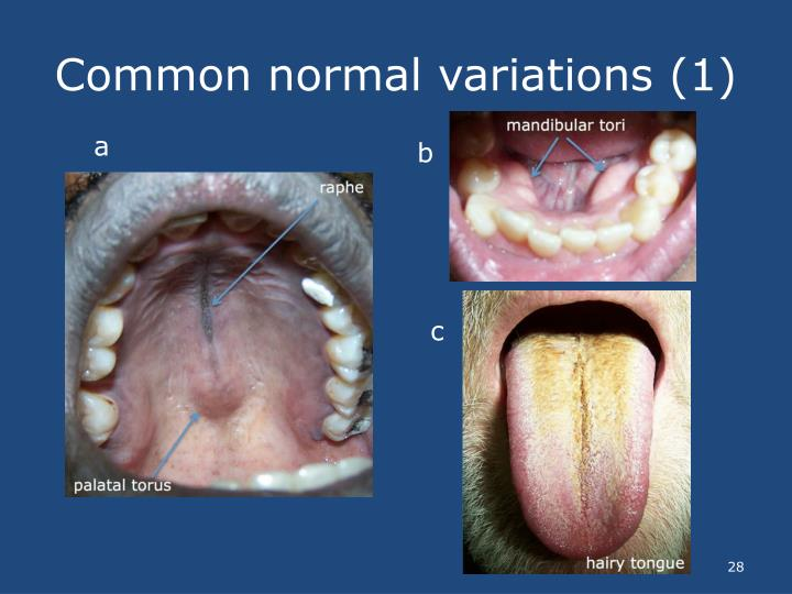 Common normal variations (1)