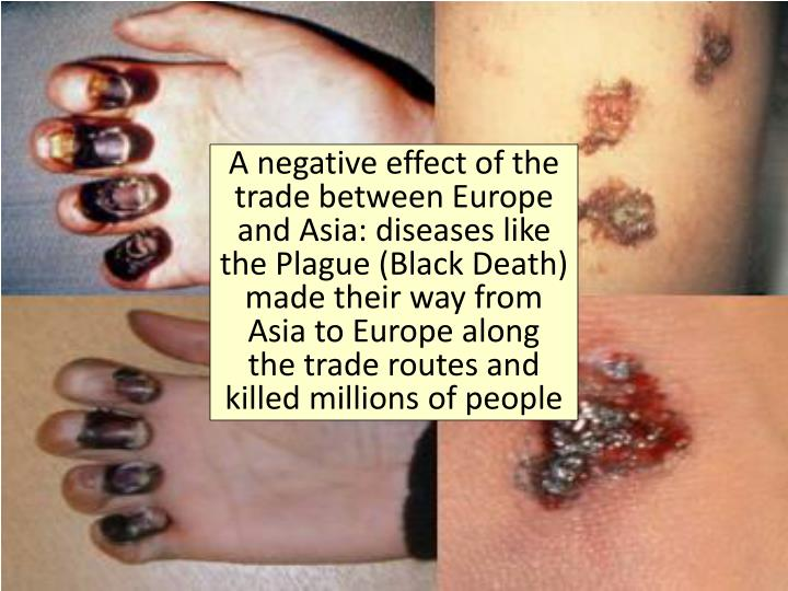 A negative effect of the trade between Europe and Asia: diseases like
