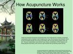 how acupuncture works1