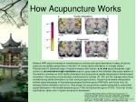 how acupuncture works2