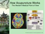 how acupuncture works3
