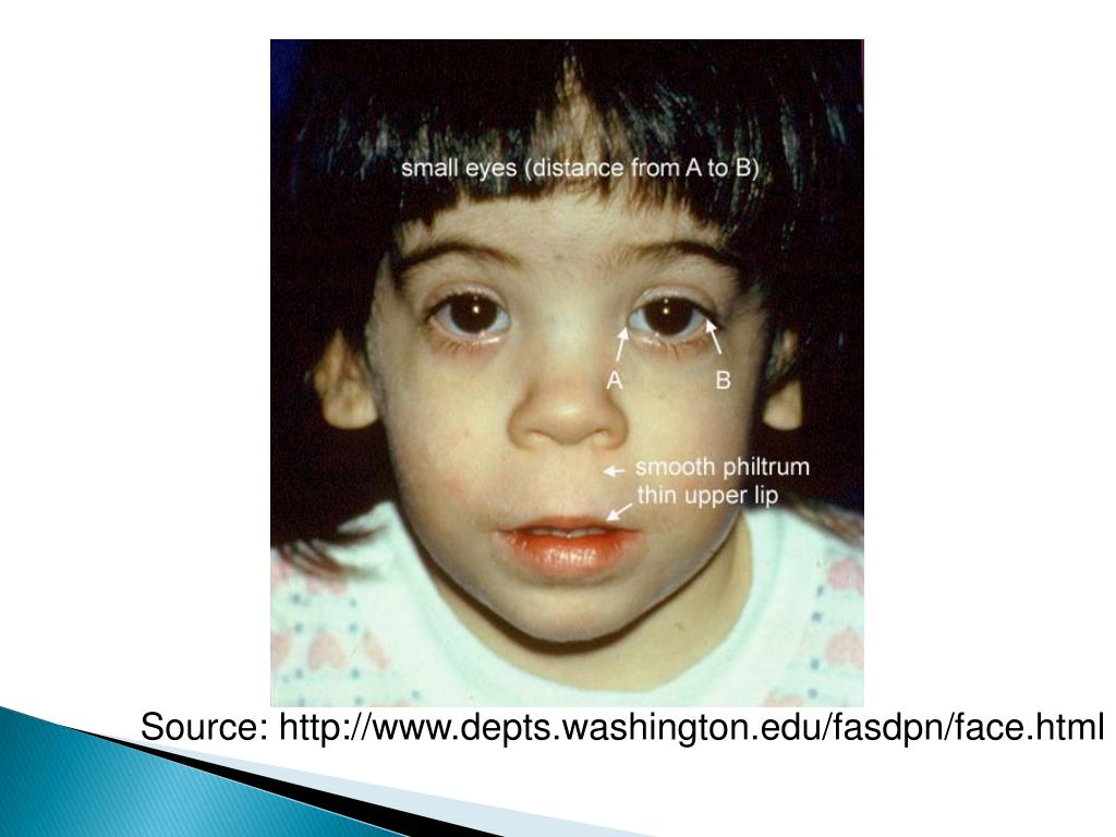 PPT - Fetal Alcohol Spectrum Disorders (FASD