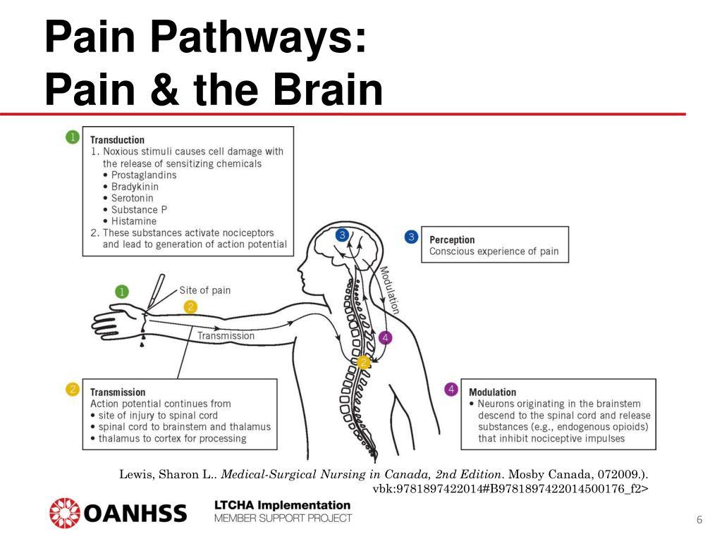PPT - Appendix G: Pain Assessment and Management Training