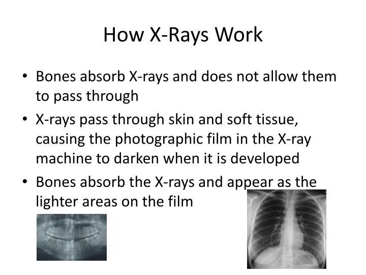 How X-Rays Work