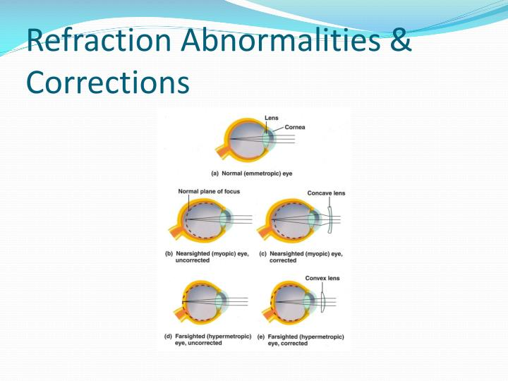 Refraction Abnormalities & Corrections