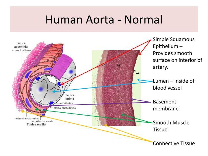 Human Aorta - Normal