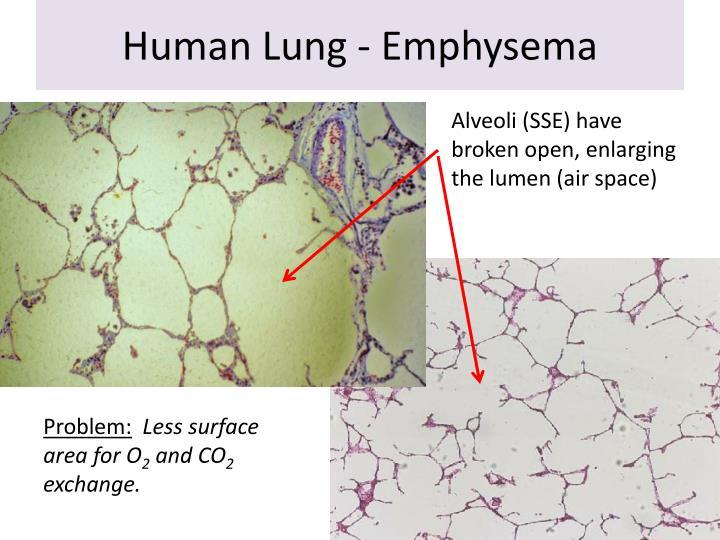 Human Lung - Emphysema