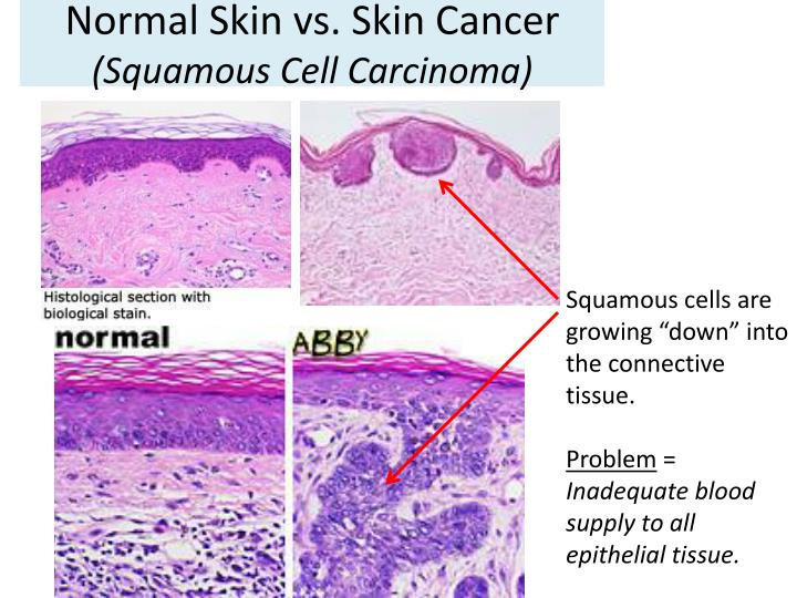 Normal skin vs skin cancer squamous cell carcinoma