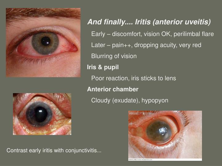 And finally.... Iritis (anterior