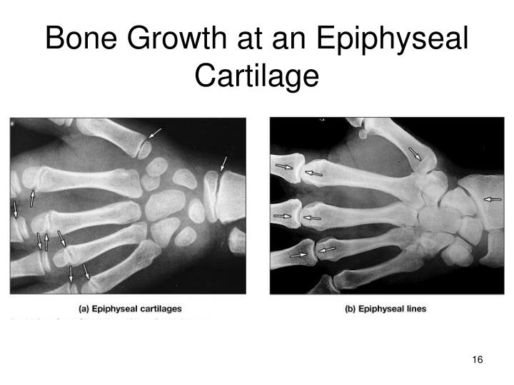 Bone Growth at an Epiphyseal Cartilage
