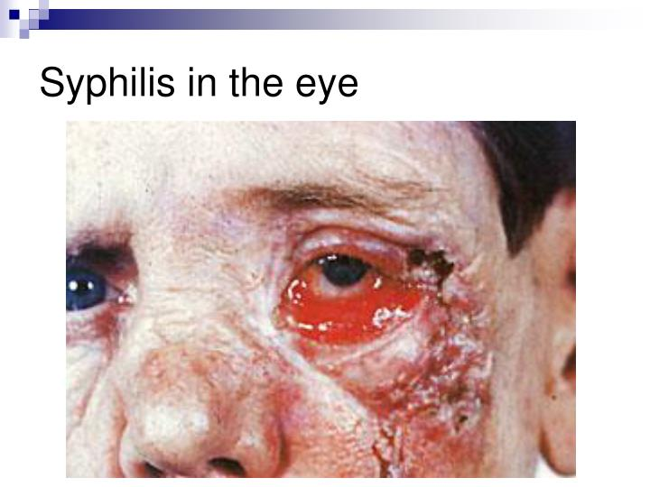 Syphilis in the eye