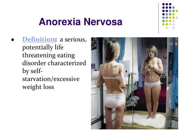 disoreder report anorexia nervosa bulimia and Statistics about eating disorder in general, and specific information about anorexia nervosa, bulimia nervosa, binge eating disorder, and many others in a large national study of college students, 35% sexual minority women and 21% of sexual minority men reported having an eating disorder6.