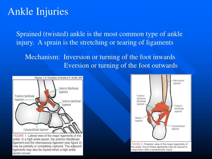 an analysis of an ankle injuries Symptoms of an ankle strain while most ankle sprains are acute injuries that occur following a single trauma, ankle strains can be either acute or chronic acute strains can occur following a single trauma, such as slipping and falling on a patch of ice or running and jumping during sports.
