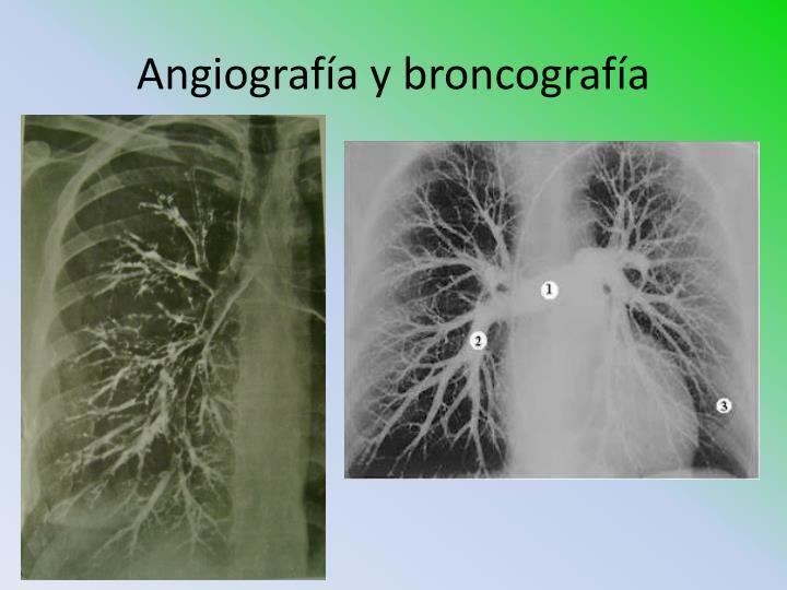 Angiografía y broncografía