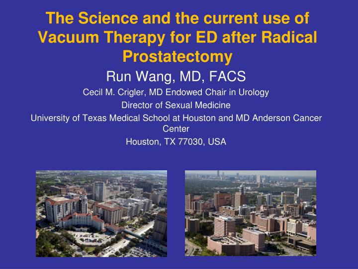 the science and the current use of vacuum therapy for ed after radical prostatectomy n.