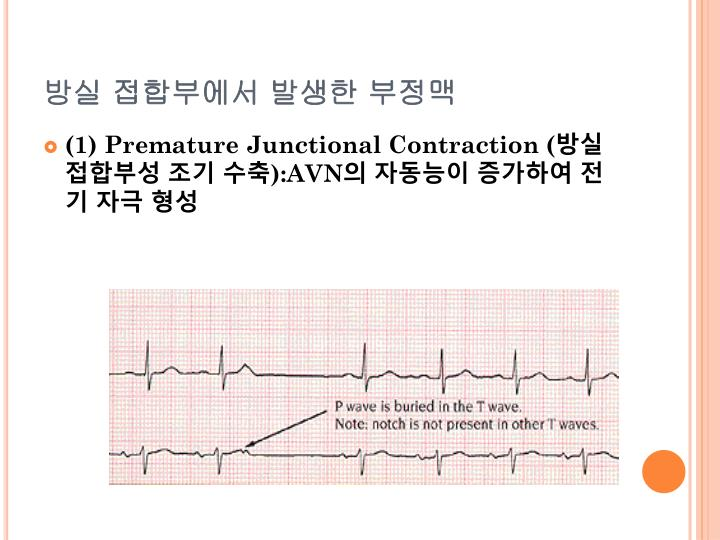 Premature Junctional Contraction P Wave PPT - 심전도 PowerP...