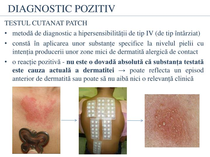 DIAGNOSTIC POZITIV