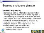 eczeme endogene i mixte
