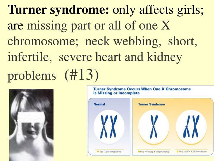 Turner syndrome: