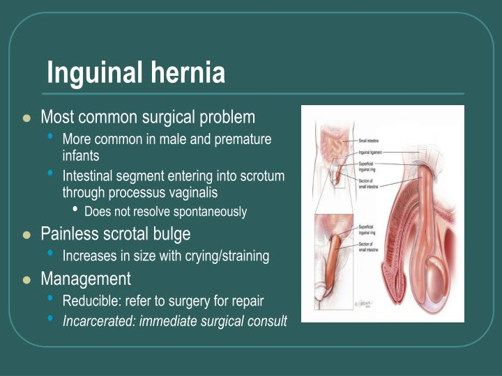 PPT - Surgical Problems in Children PowerPoint ...