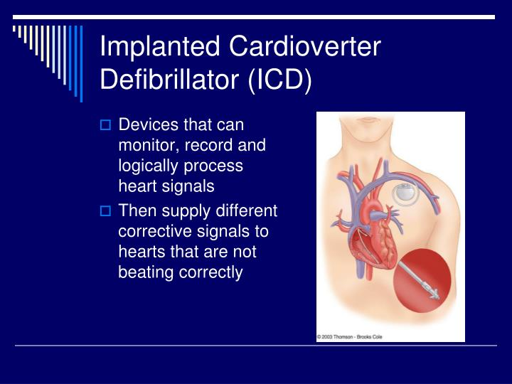 Implanted Cardioverter Defibrillator (ICD)