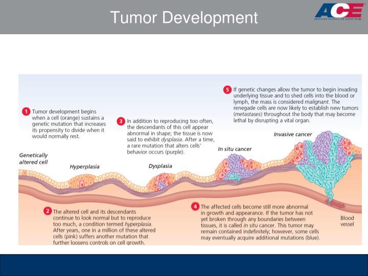 Tumor Development