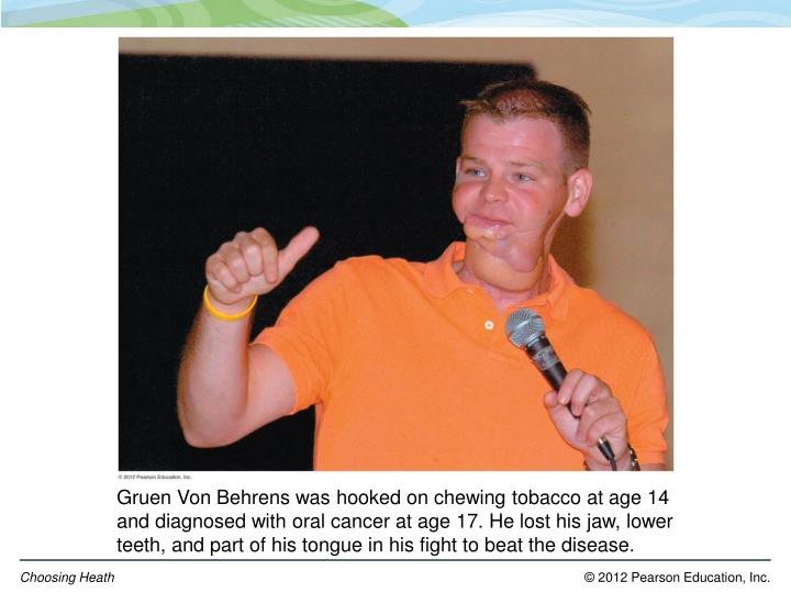 Gruen Von Behrens was hooked on chewing tobacco at age 14 and diagnosed with oral cancer at age 17. He lost his jaw, lower teeth, and part of his tongue in his fight to beat the disease.