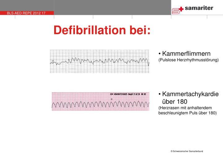Defibrillation bei: