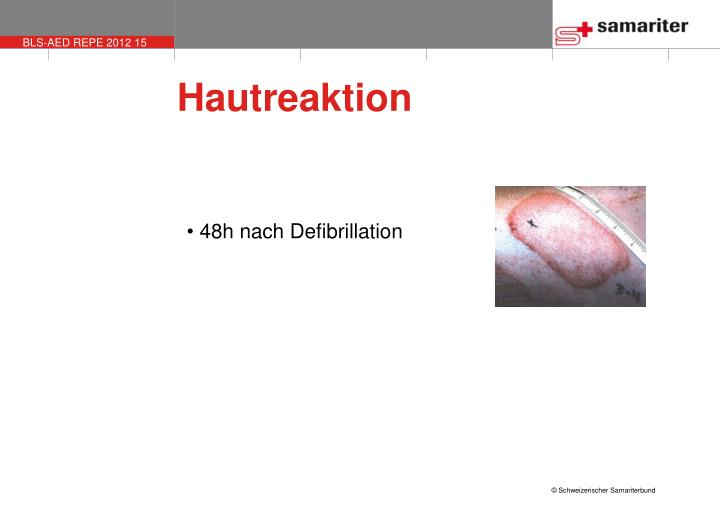 Hautreaktion