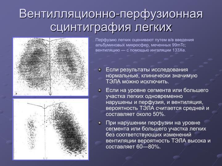 Вентилляционно-перфузионная сцинтиграфия легких