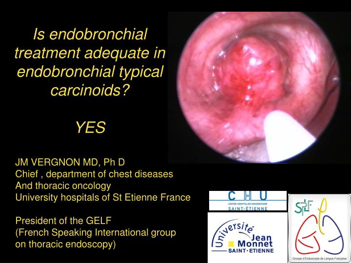 is endobronchial treatment adequate in endobronchial typical carcinoids yes n.