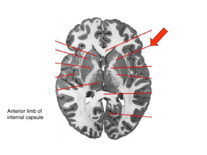 Anterior limb of internal capsule