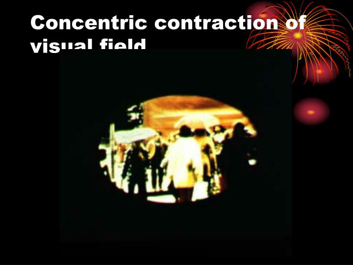Concentric contraction of visual field