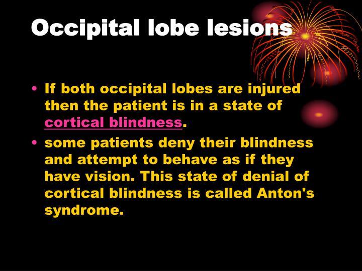 Occipital lobe lesions