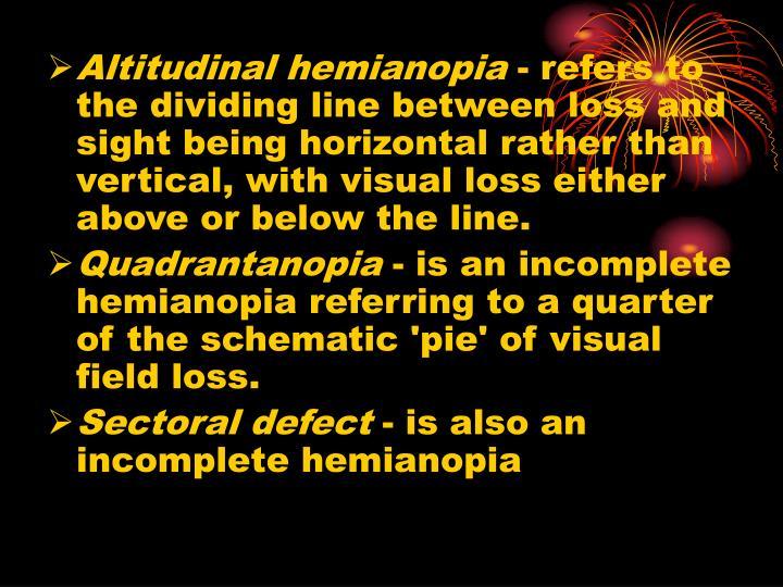 Altitudinal hemianopia