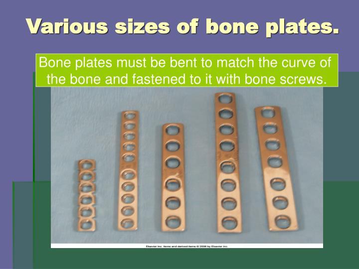 Various sizes of bone plates.