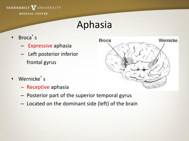 wernicke's aphasia Wernicke's aphasia — noun aphasia characterized by fluent but meaningless speech and severe impairment of the ability understand spoken or written words • syn: ↑fluent aphasia, ↑receptive.