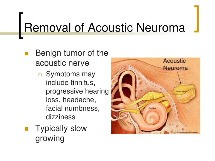 Removal of Acoustic Neuroma