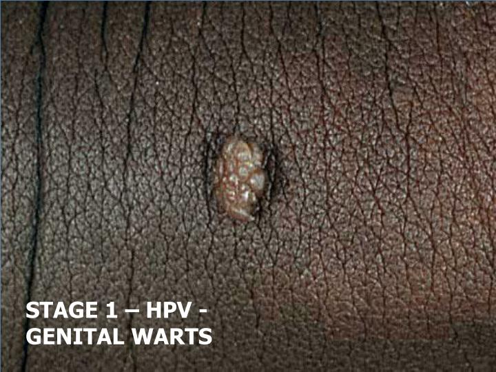 STAGE 1 – HPV - GENITAL WARTS