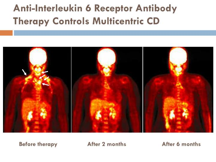 Anti-Interleukin 6 Receptor Antibody Therapy Controls Multicentric CD