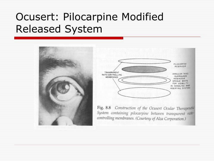 Ocusert: Pilocarpine Modified Released System