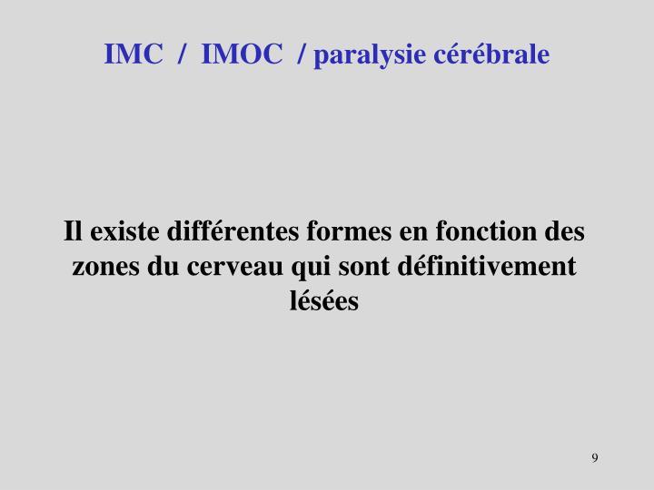 IMC  /  IMOC  / paralysie cérébrale