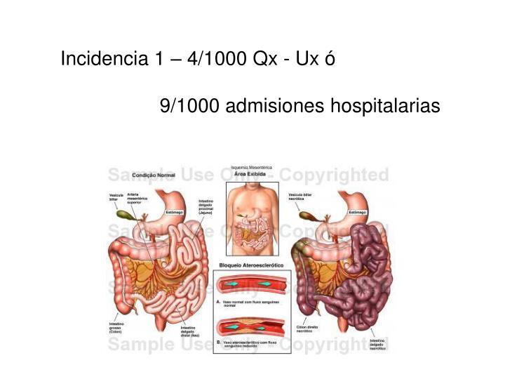 Incidencia 1 – 4/1000 Qx - Ux ó