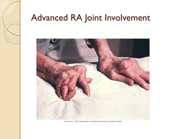 Advanced RA Joint Involvement