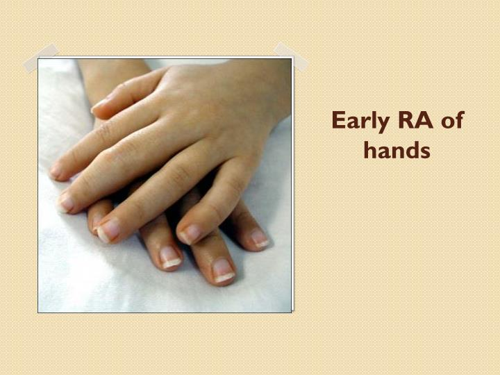 Early RA of hands